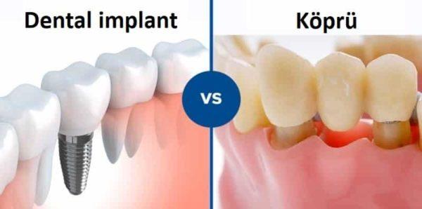 Diş implantları