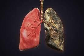 Sigara İçmenin Solunum Sistemi Üzerindeki Etkileri