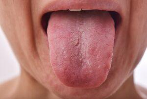 Dil Çatlaması Nedir